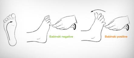 Babinski Reflex test